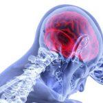 Körperliche Einschränkungen nach einem Schlaganfall